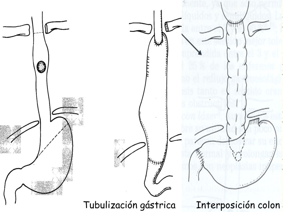 Tubulización gástrica Interposición colon