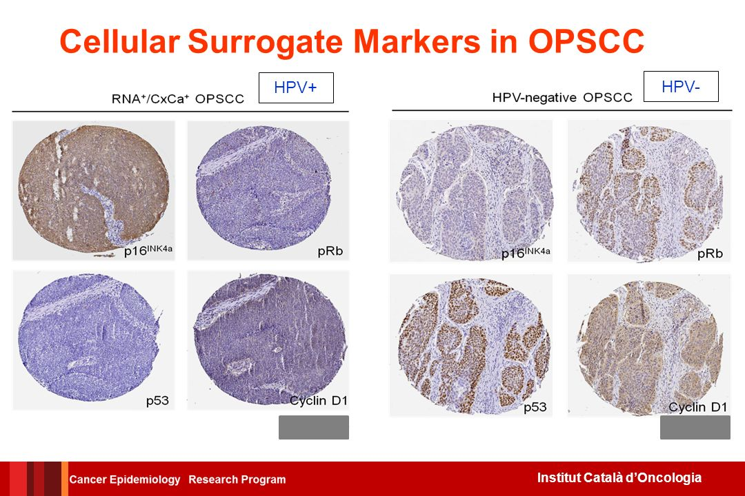 Cellular Surrogate Markers in OPSCC