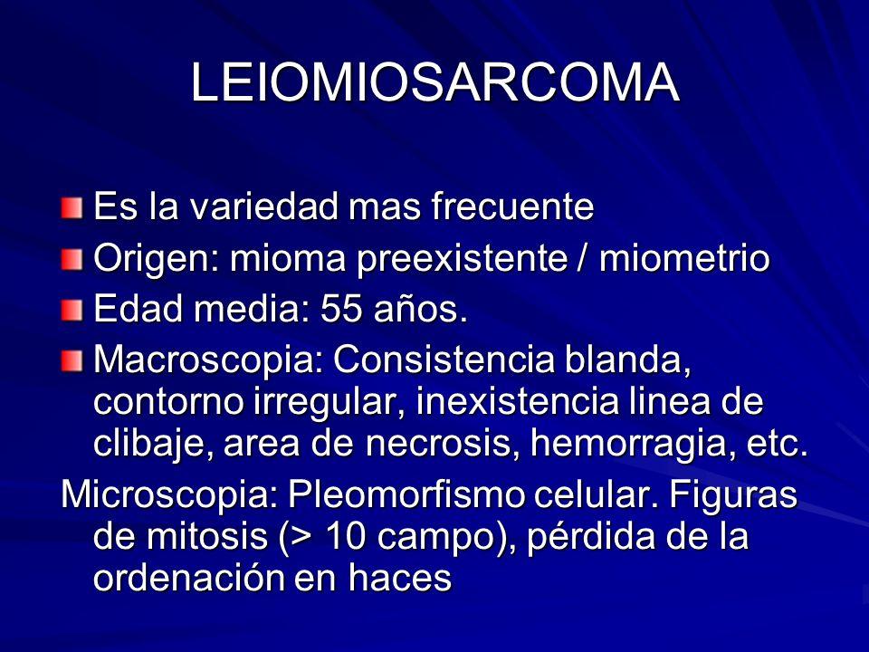LEIOMIOSARCOMA Es la variedad mas frecuente