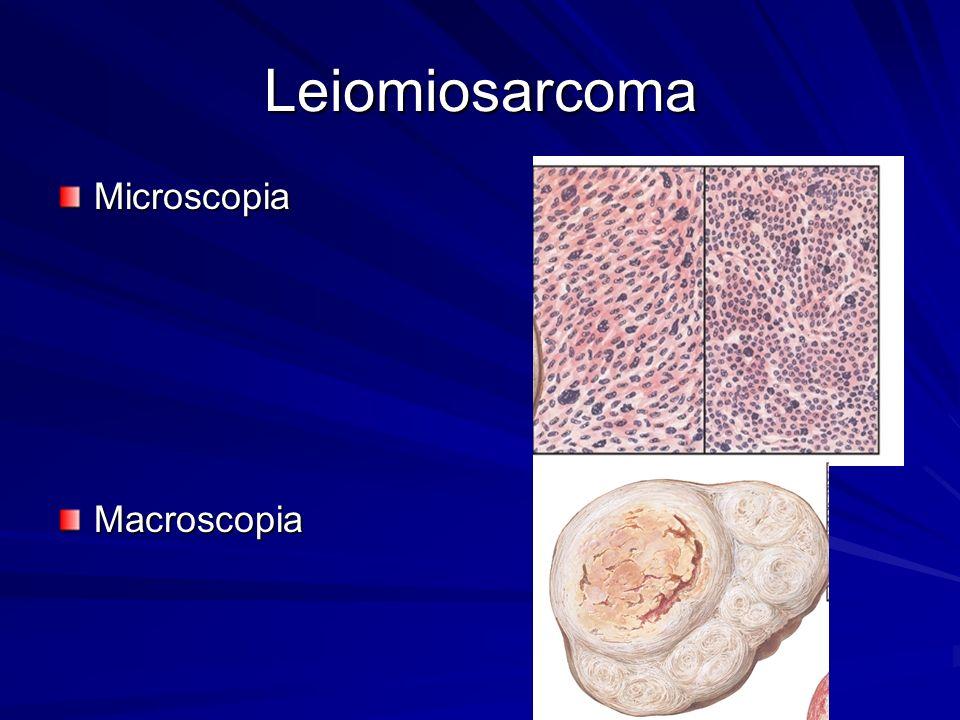 Leiomiosarcoma Microscopia Macroscopia