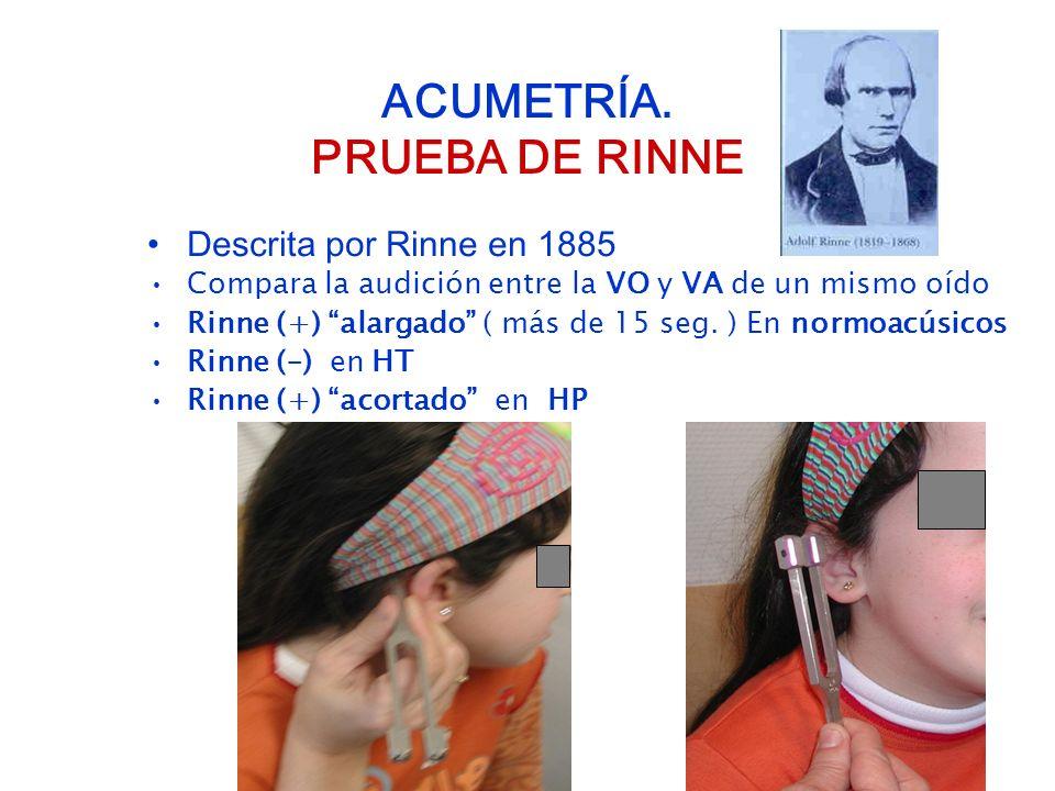 ACUMETRÍA. PRUEBA DE RINNE
