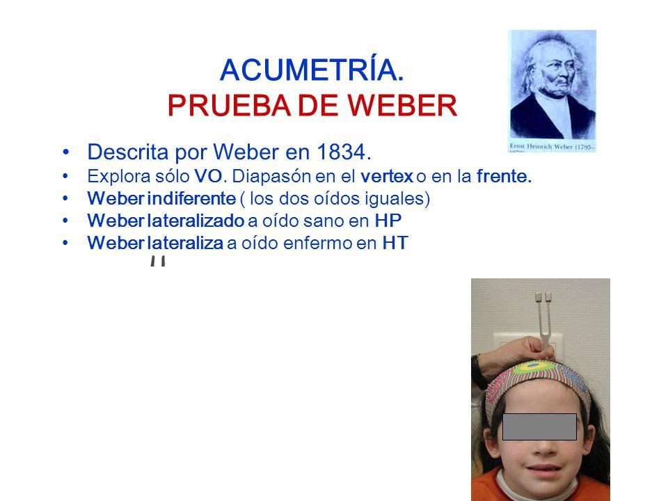 ACUMETRÍA. PRUEBA DE WEBER