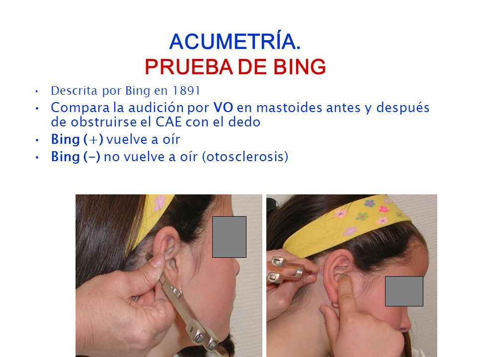 ACUMETRÍA. PRUEBA DE BING