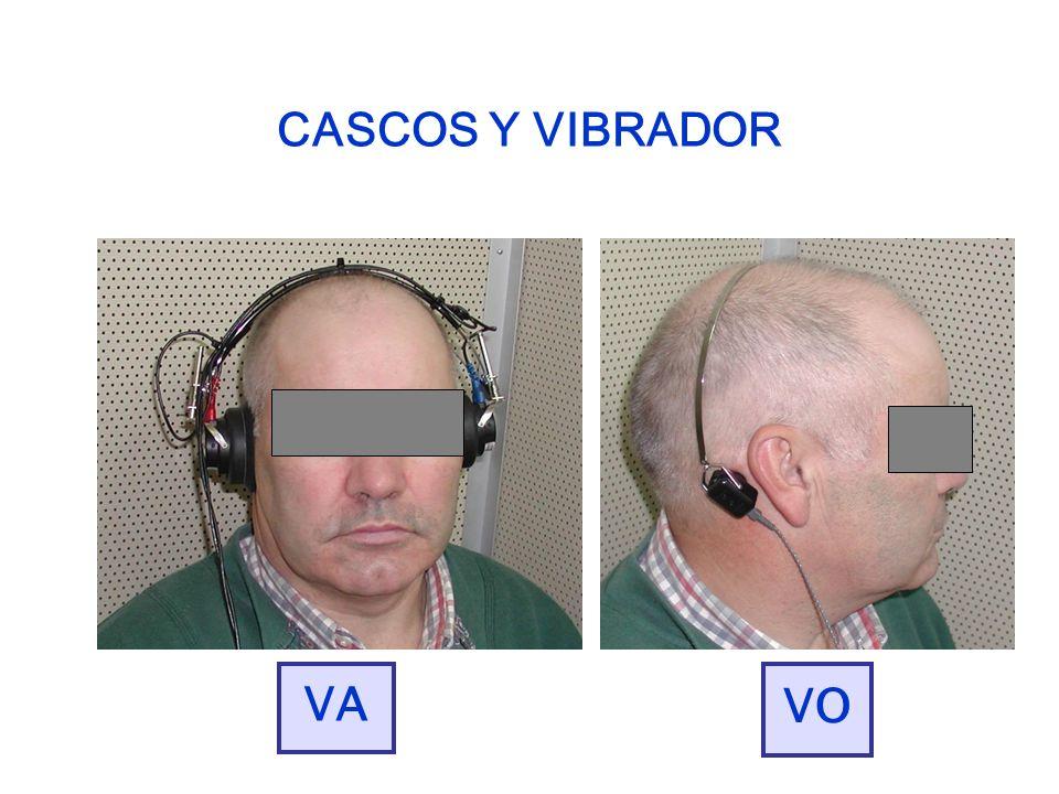CASCOS Y VIBRADOR VA VO