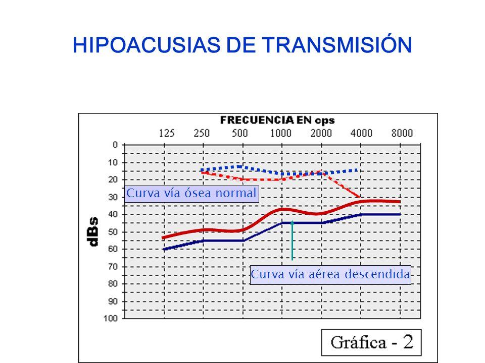 HIPOACUSIAS DE TRANSMISIÓN