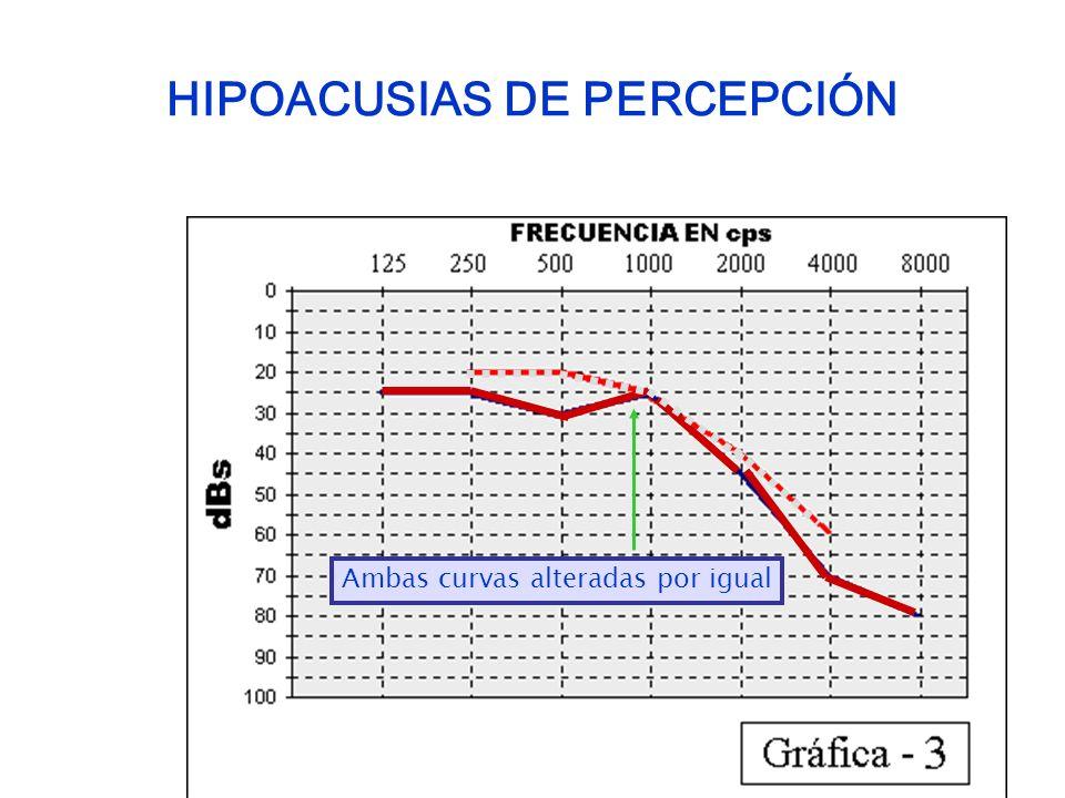 HIPOACUSIAS DE PERCEPCIÓN