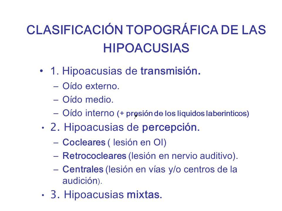 CLASIFICACIÓN TOPOGRÁFICA DE LAS HIPOACUSIAS