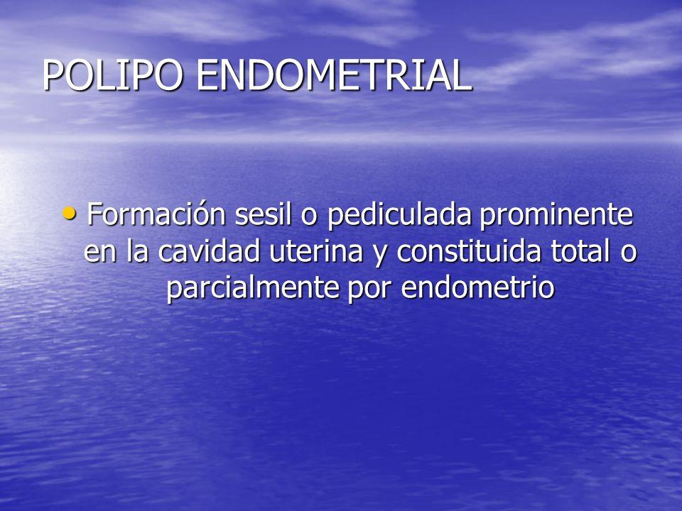 POLIPO ENDOMETRIAL Formación sesil o pediculada prominente en la cavidad uterina y constituida total o parcialmente por endometrio.
