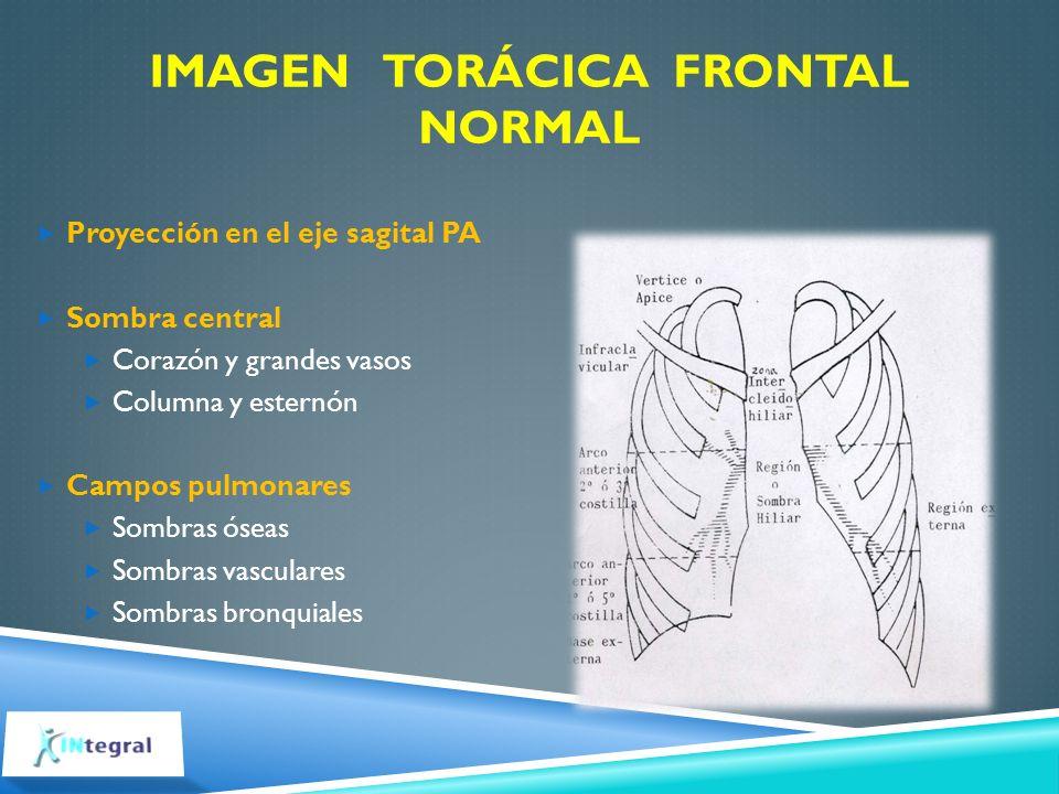 Imagen torácica frontal normal