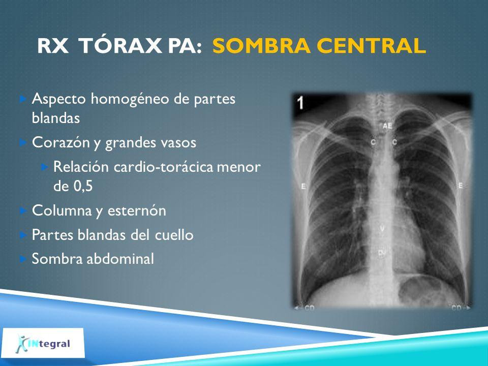 RX Tórax PA: Sombra central
