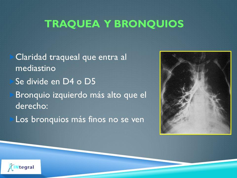 Traquea y bronquios Claridad traqueal que entra al mediastino