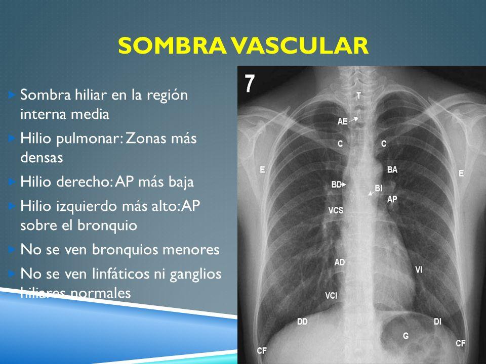 Sombra vascular Sombra hiliar en la región interna media