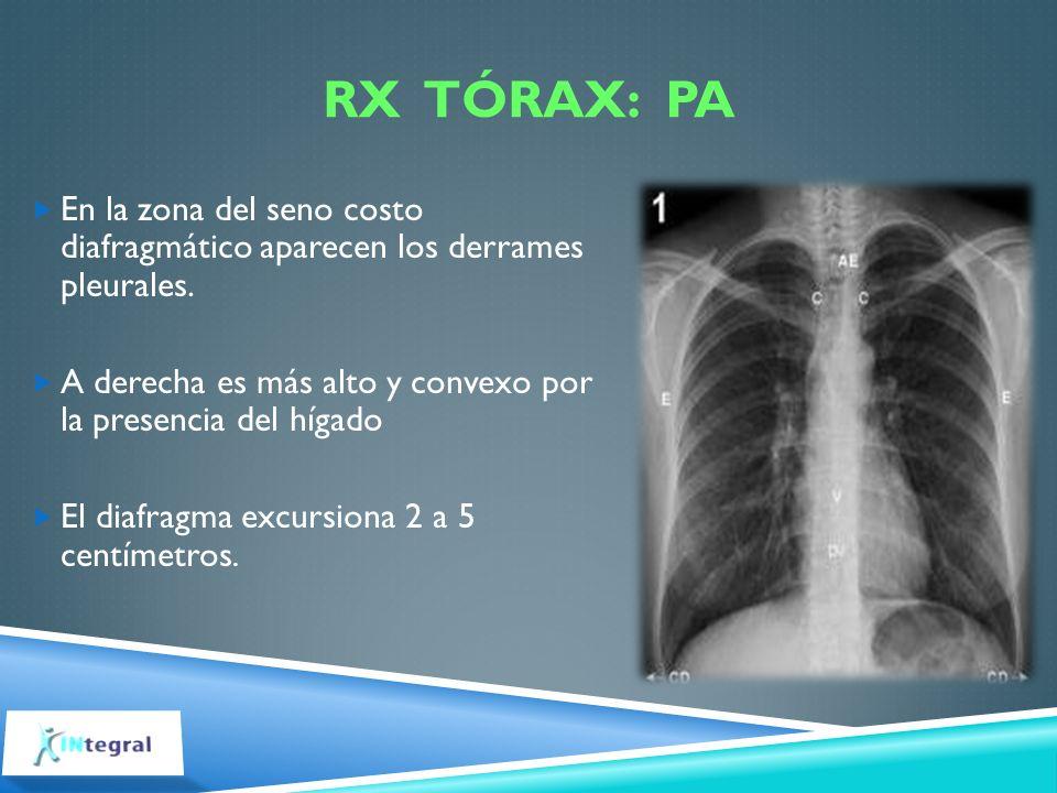 RX Tórax: PA En la zona del seno costo diafragmático aparecen los derrames pleurales.