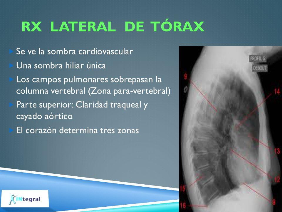 RX lateral de tórax Se ve la sombra cardiovascular