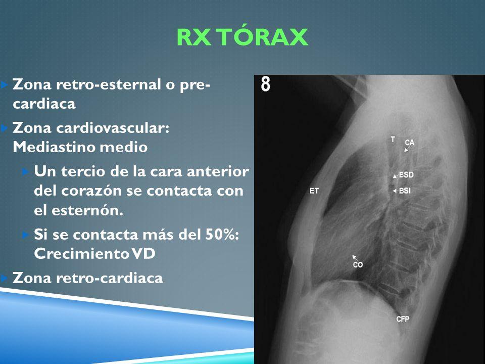 RX Tórax Zona retro-esternal o pre- cardiaca