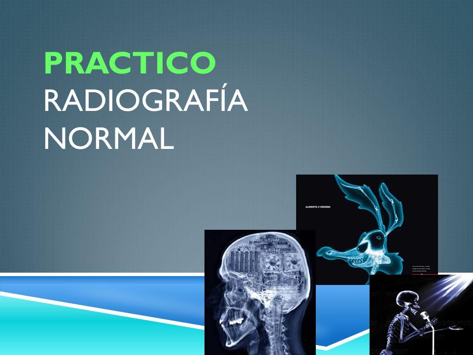 Practico Radiografía Normal