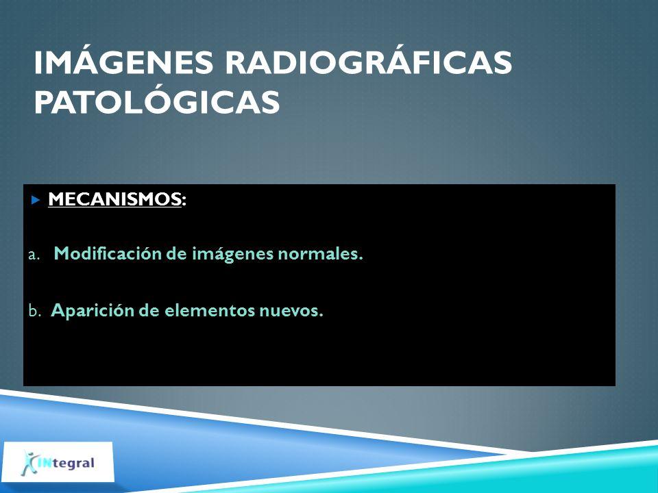 IMÁGENES RADIOGRÁFICAS PATOLÓGICAS