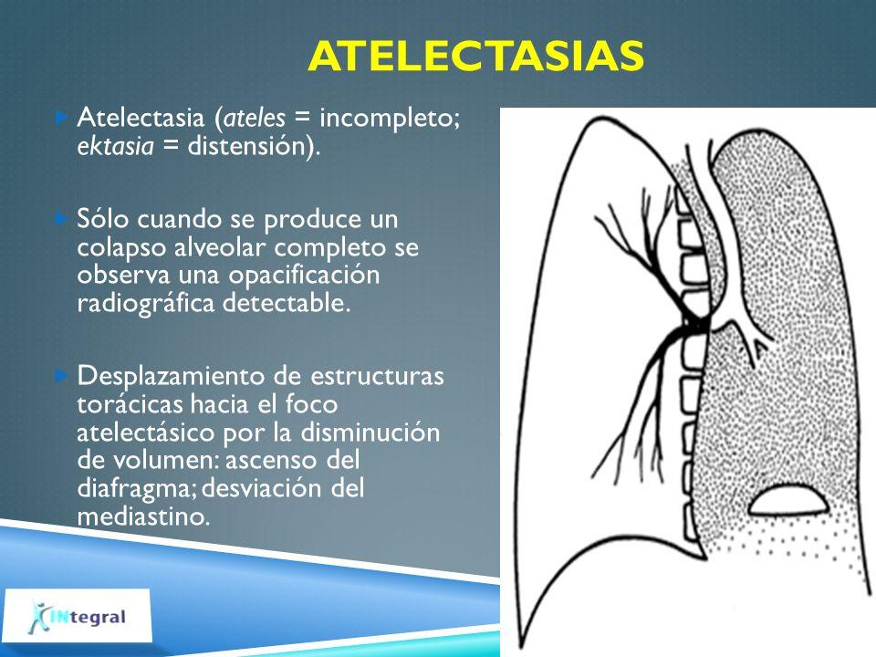 Atelectasias Atelectasia (ateles = incompleto; ektasia = distensión).