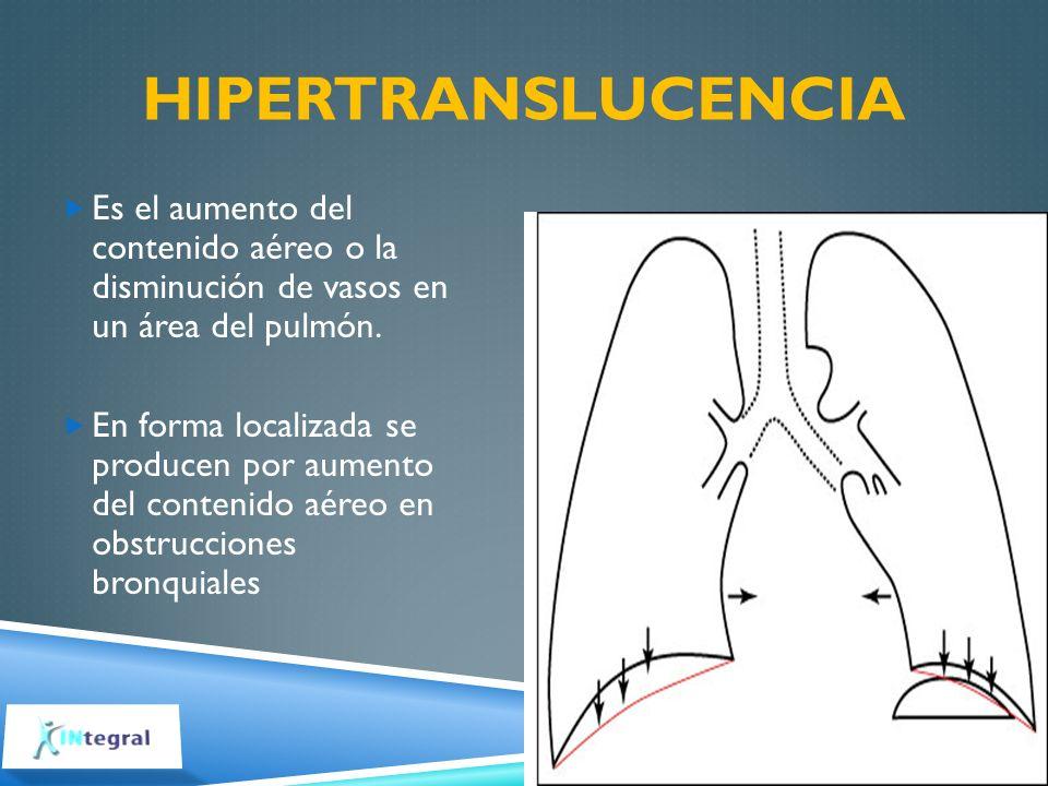 Hipertranslucencia Es el aumento del contenido aéreo o la disminución de vasos en un área del pulmón.