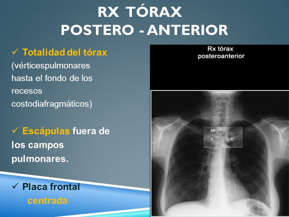 Rx tórax postero - anterior