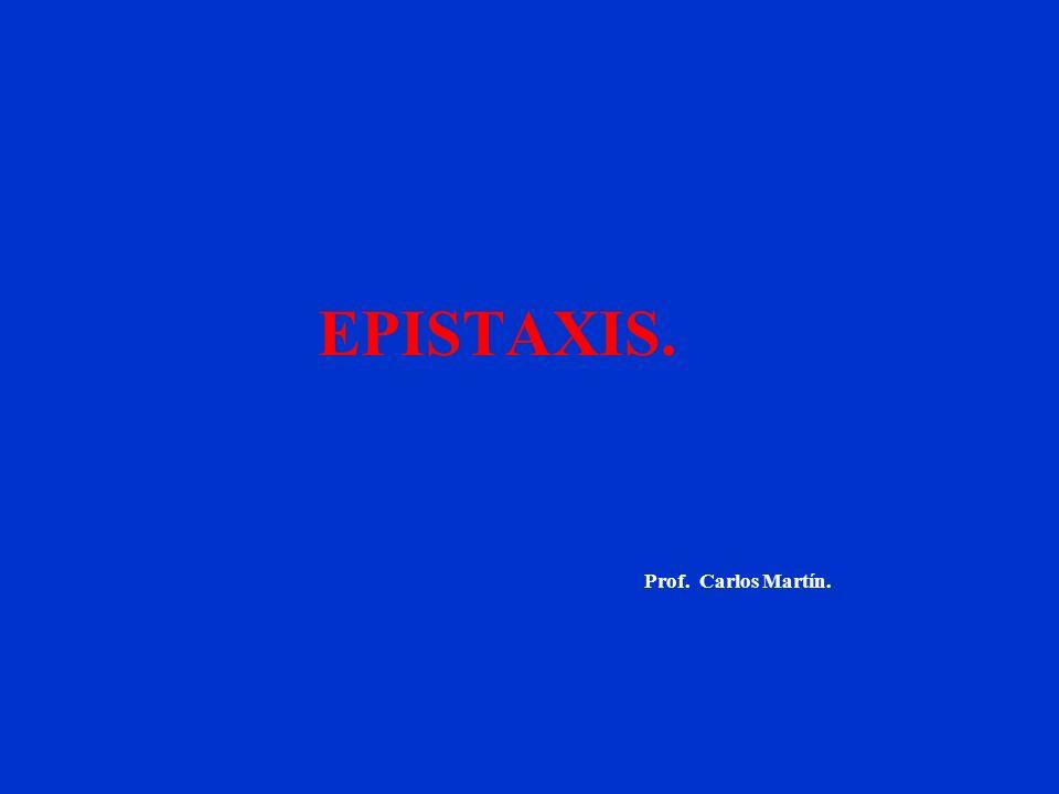 EPISTAXIS. Prof. Carlos Martín.
