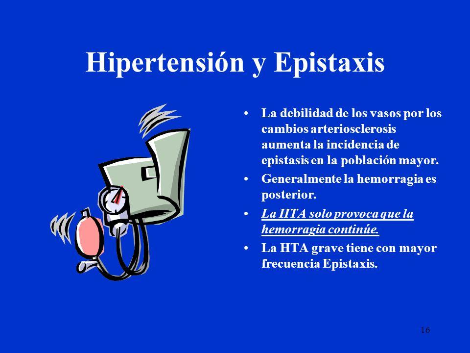 Hipertensión y Epistaxis