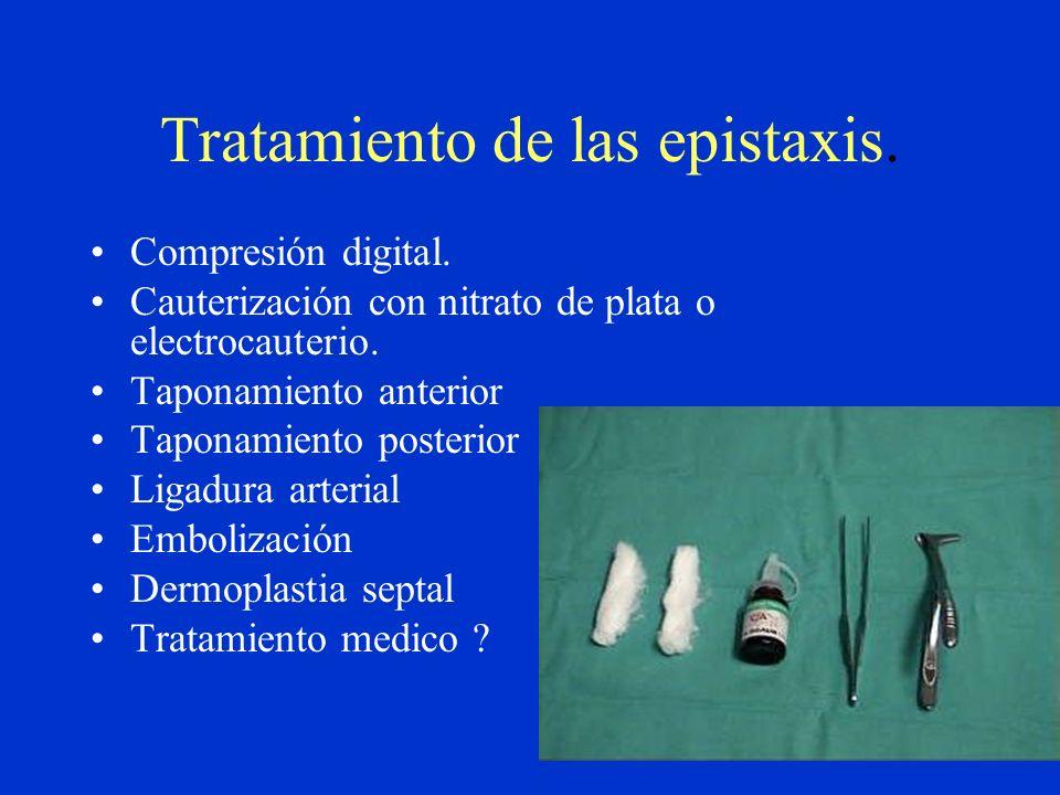 Tratamiento de las epistaxis.