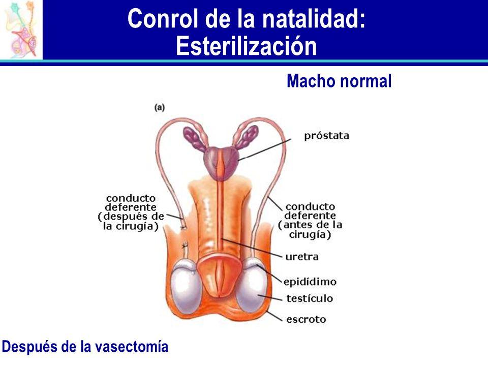Conrol de la natalidad: Esterilización