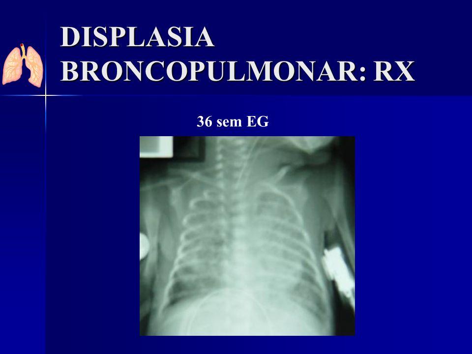 DISPLASIA BRONCOPULMONAR: RX