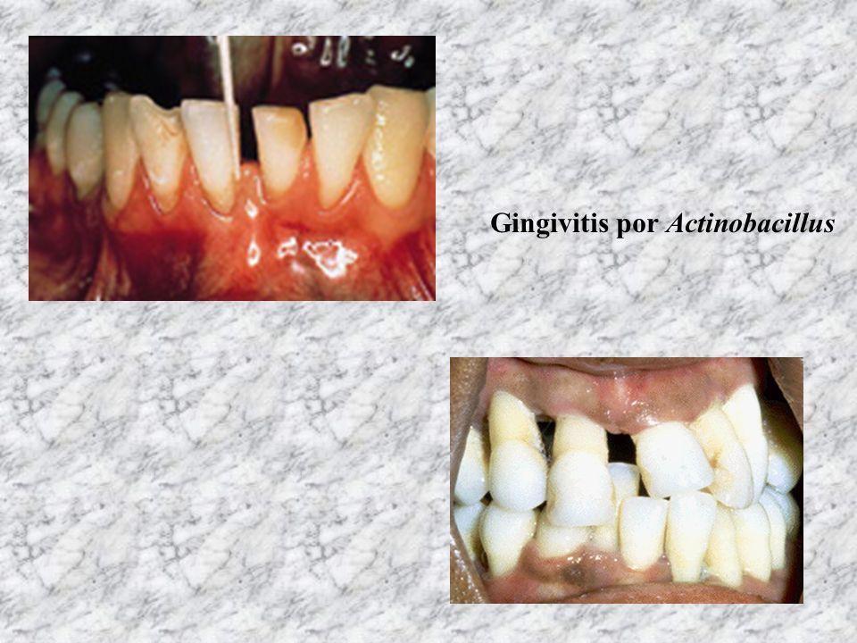 Gingivitis por Actinobacillus