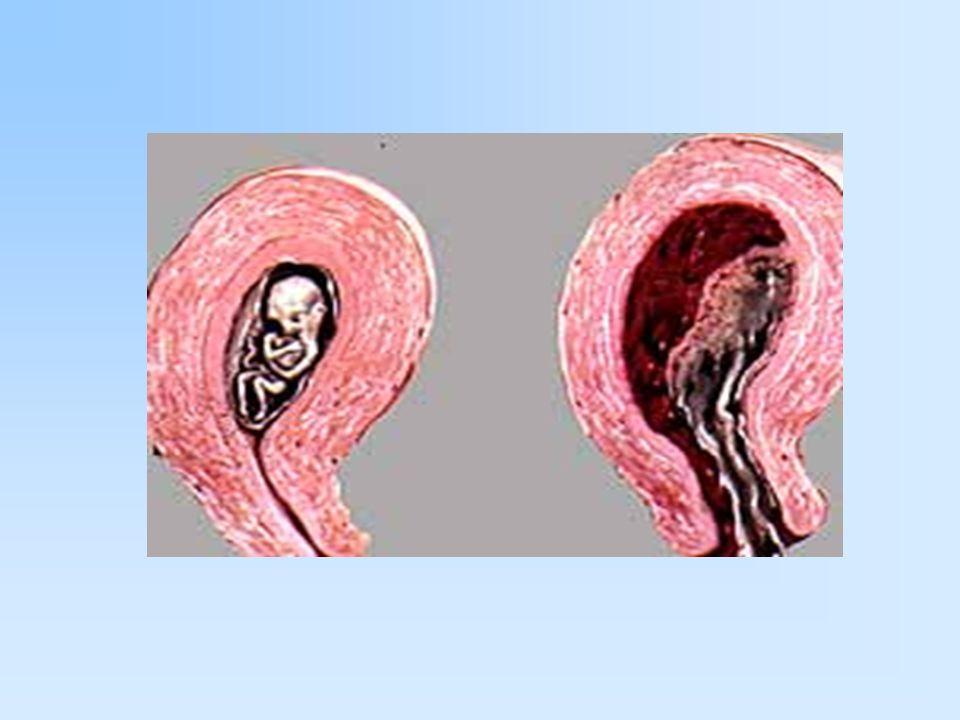 La mayoria de las mujeres tienen abortos sin saber que estan embarazadas
