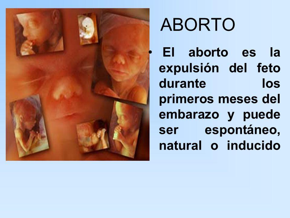 ABORTO El aborto es la expulsión del feto durante los primeros meses del embarazo y puede ser espontáneo, natural o inducido.