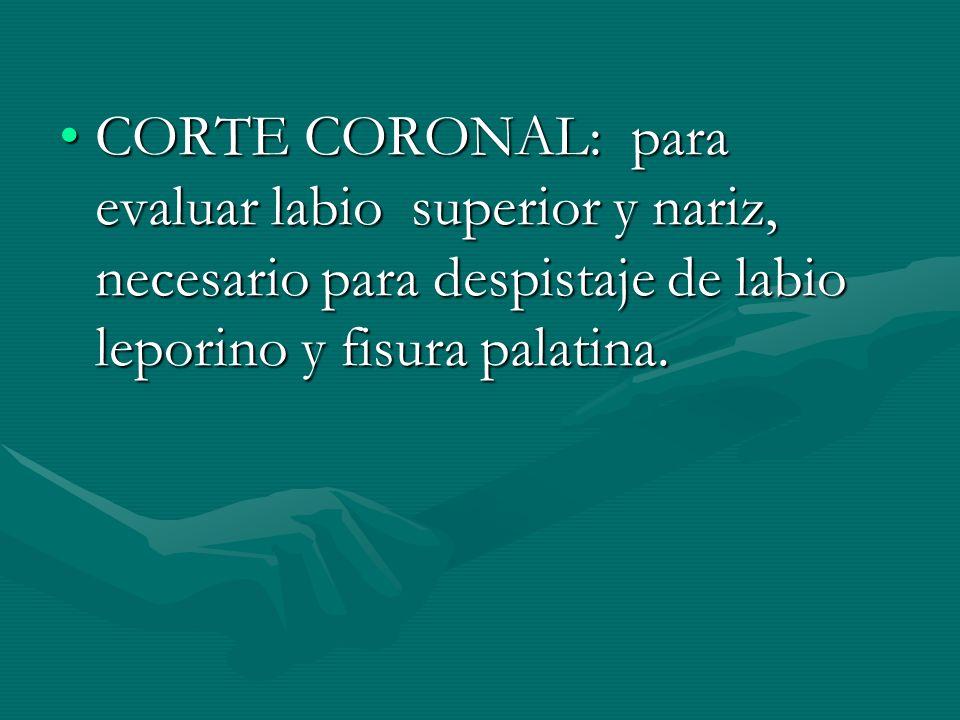 CORTE CORONAL: para evaluar labio superior y nariz, necesario para despistaje de labio leporino y fisura palatina.