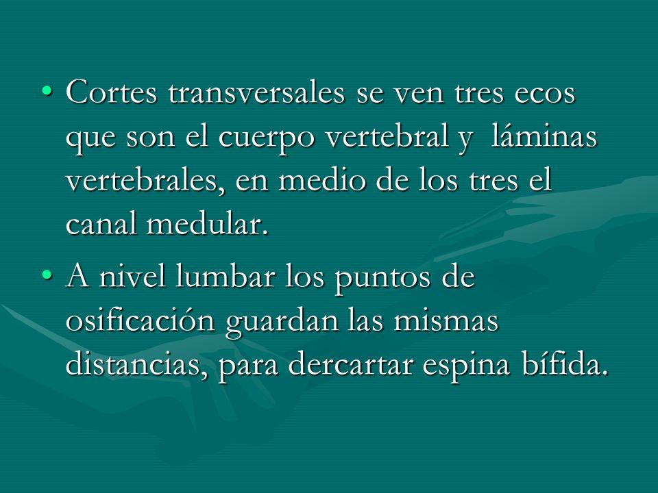 Cortes transversales se ven tres ecos que son el cuerpo vertebral y láminas vertebrales, en medio de los tres el canal medular.