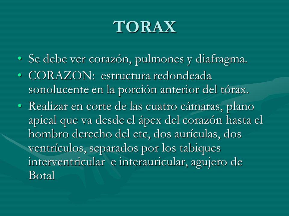 TORAX Se debe ver corazón, pulmones y diafragma.