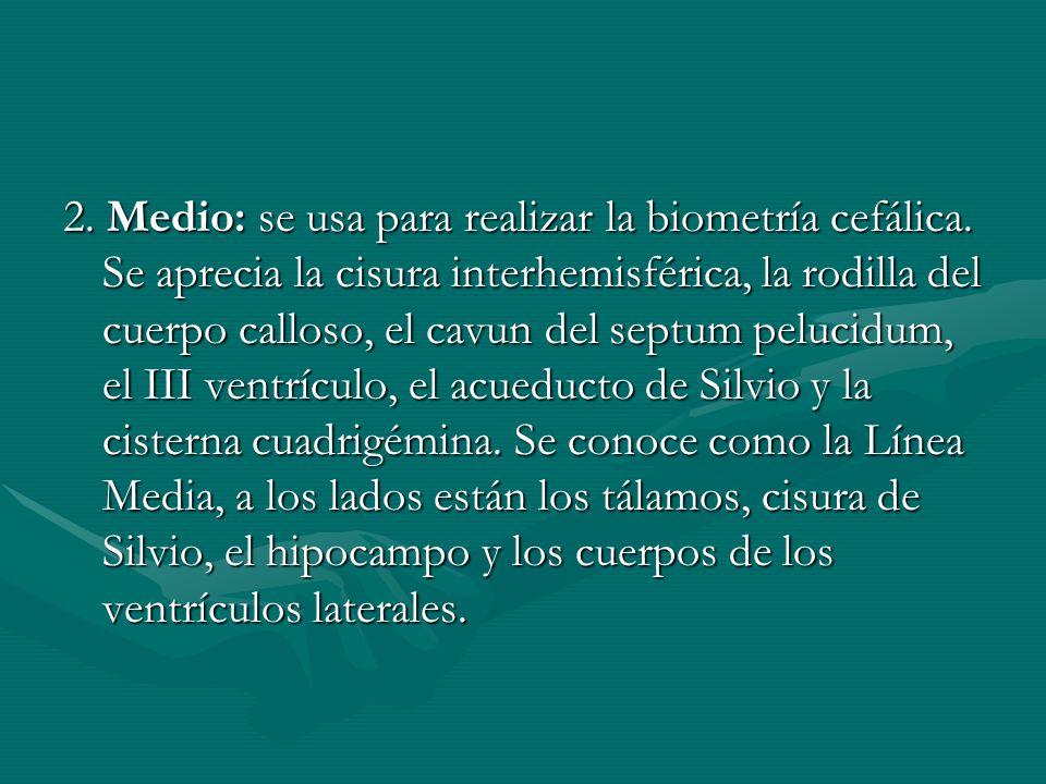 2. Medio: se usa para realizar la biometría cefálica