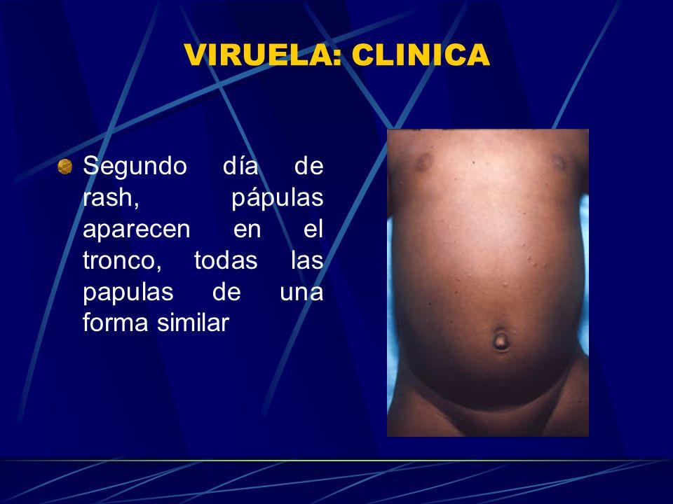 VIRUELA: CLINICA Segundo día de rash, pápulas aparecen en el tronco, todas las papulas de una forma similar.