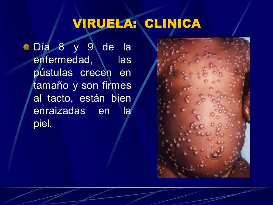 VIRUELA: CLINICA Día 8 y 9 de la enfermedad, las pústulas crecen en tamaño y son firmes al tacto, están bien enraizadas en la piel.