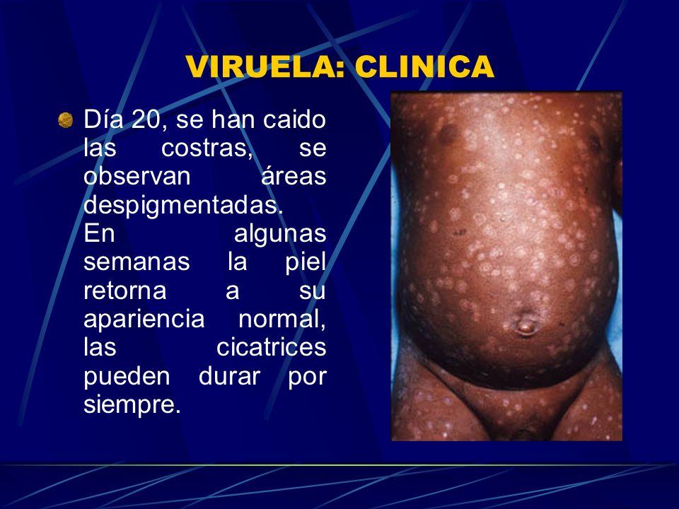 VIRUELA: CLINICA