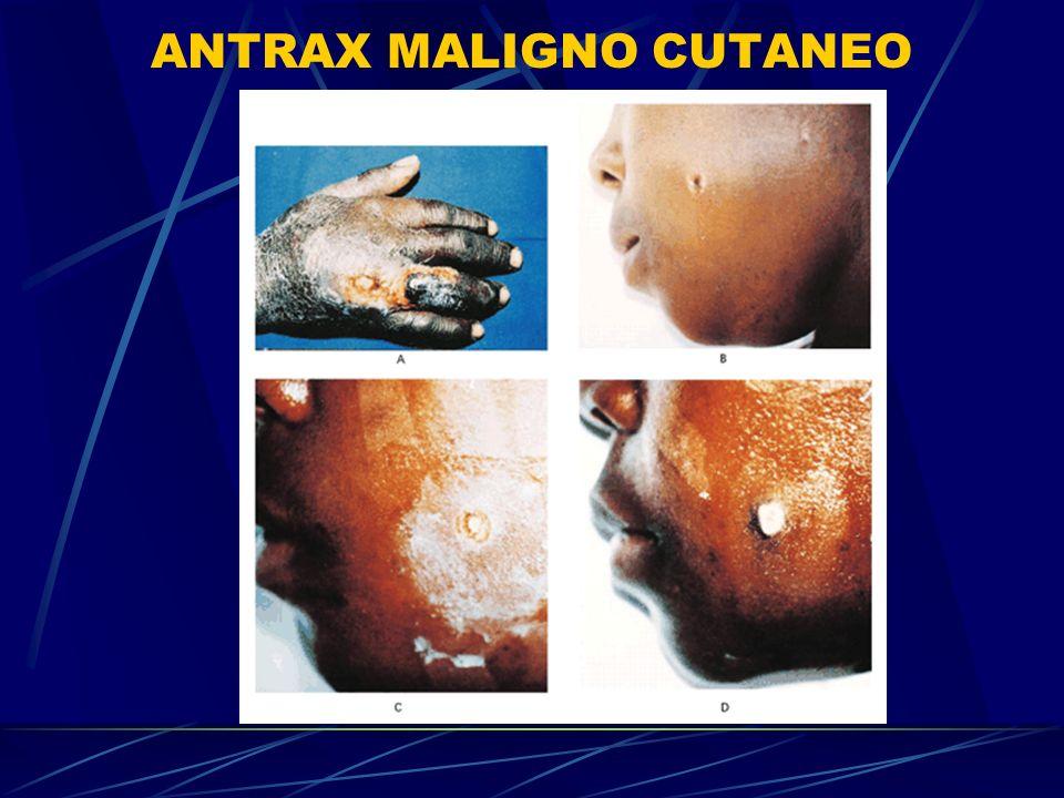 ANTRAX MALIGNO CUTANEO