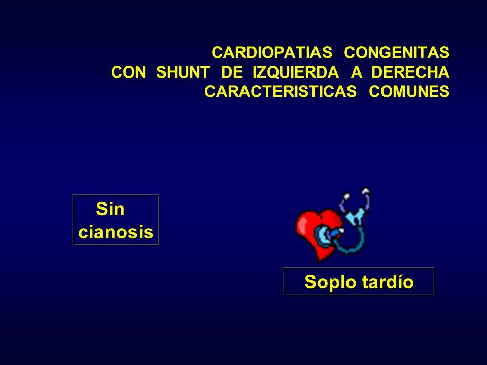 Sin cianosis Soplo tardío