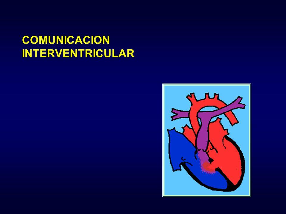 COMUNICACION INTERVENTRICULAR