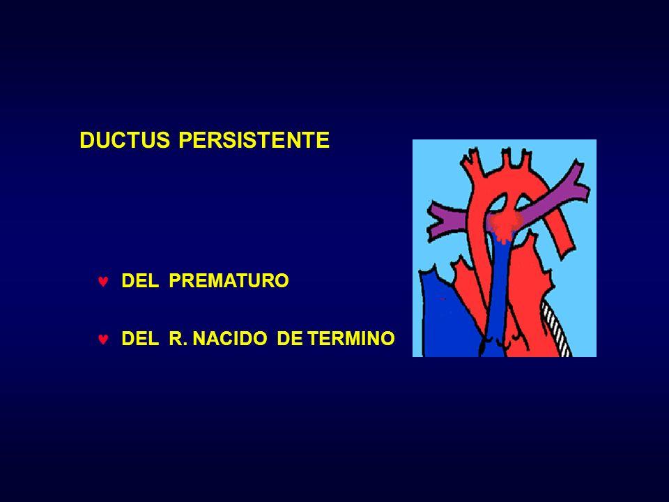 DUCTUS PERSISTENTE DEL PREMATURO DEL R. NACIDO DE TERMINO