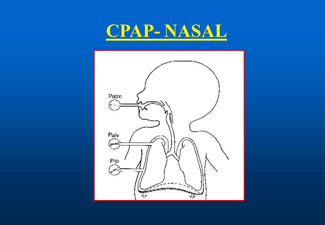 CPAP- NASAL
