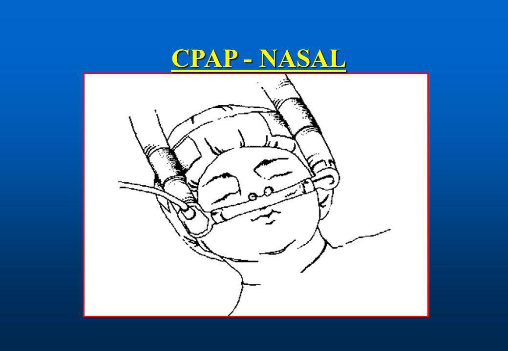CPAP - NASAL
