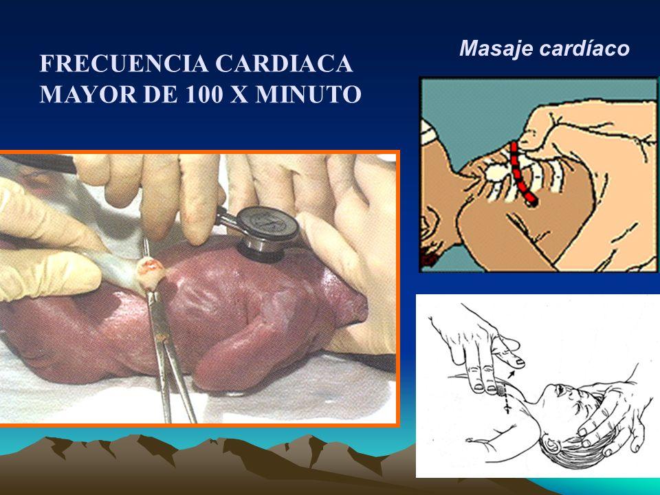 Masaje cardíaco FRECUENCIA CARDIACA MAYOR DE 100 X MINUTO