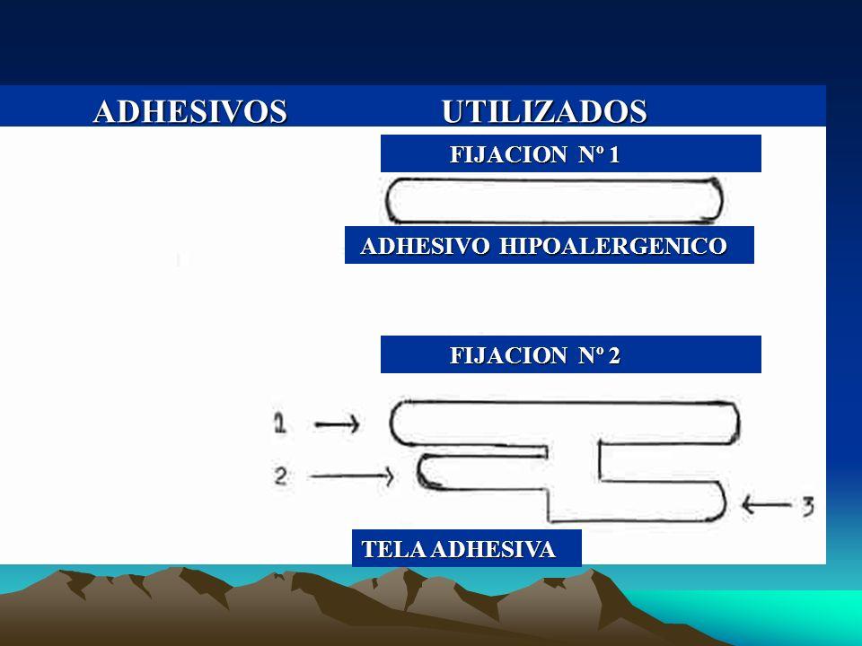 ADHESIVOS UTILIZADOS FIJACION Nº 1 ADHESIVO HIPOALERGENICO