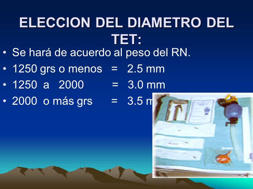 ELECCION DEL DIAMETRO DEL TET: