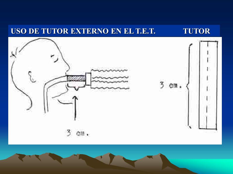 USO DE TUTOR EXTERNO EN EL T.E.T.