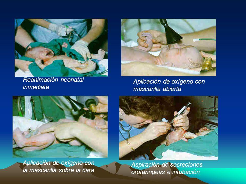 Reanimación neonatal inmediata